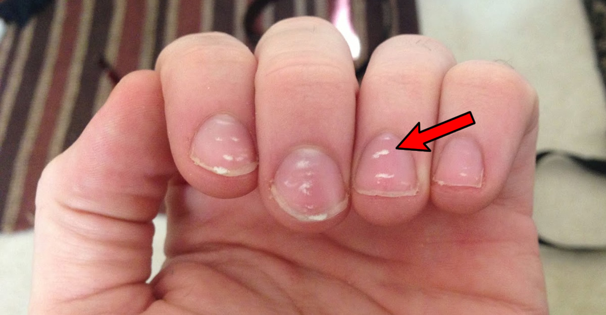 White spots on nails: Causes, prevention, and treatment – BACT MED
